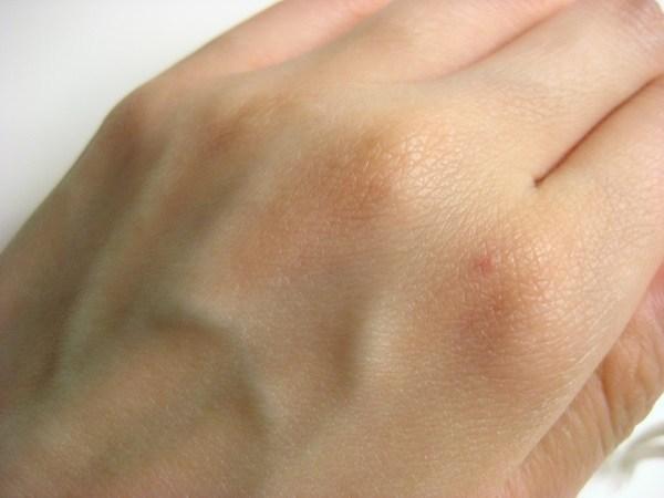老人性血管腫の除去