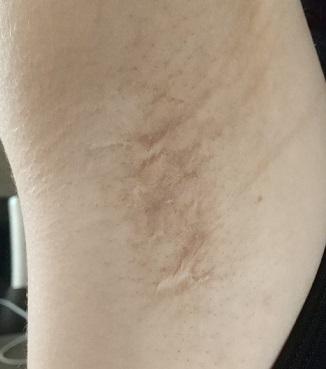 わきが手術の傷跡
