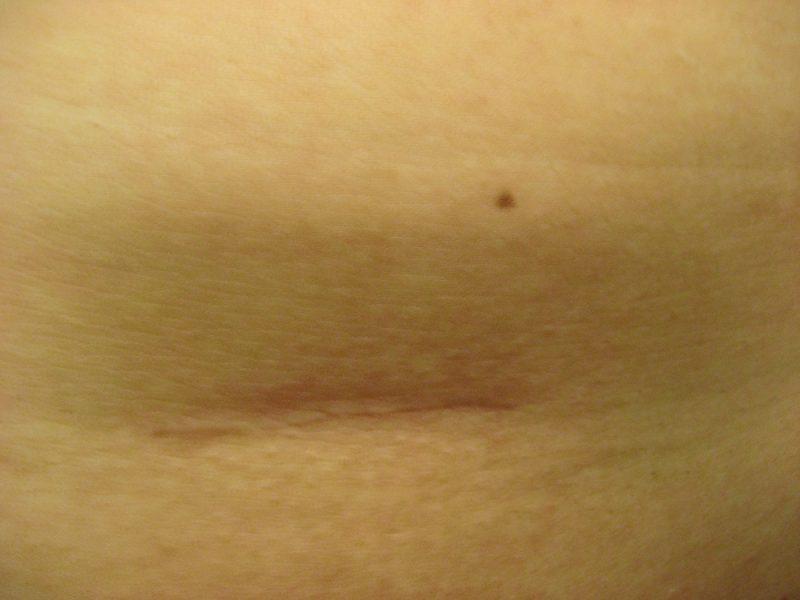 卵巣嚢腫手術体験談