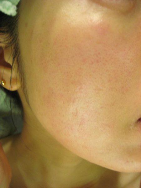 デトランスα(パースピレックス)を顔汗に塗るのは危険