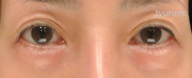 涙袋ヒアルロン酸の持ちとデメリット