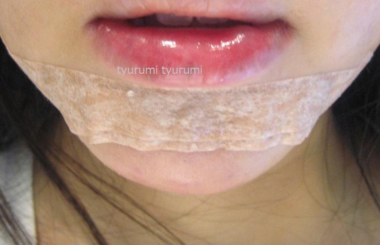 顎プロテーゼ入れ替えた私の体験談【ダウンタイム、痛み、食事は?】